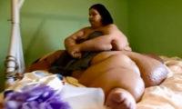 ინდოელმა ქირურგებმა 400 კილოგრამიან ეგვიპტელ ქალს კუჭი დაუპატარავეს