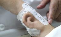 ქირურგებმა ჩინელს მისივე ხელზე გამოყვანილი ყური გადაუნერგეს